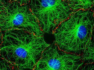 Jan Schmoranzer - Starved Fibroblasts 1
